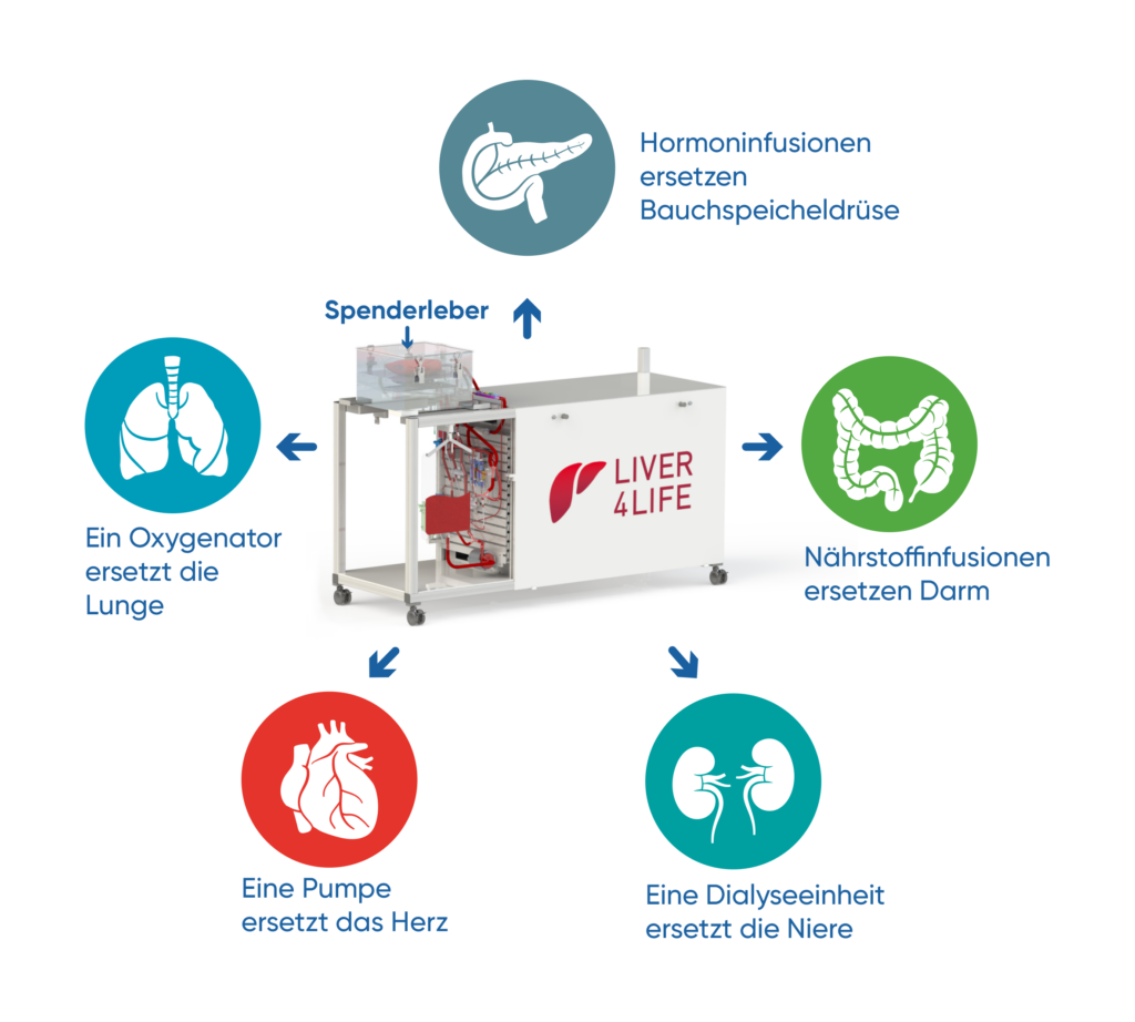 Die Perfusionsmaschine ersetzt die Funktion diverser Organe, um die Leber ausserhalb des Körpers am Leben zu halten