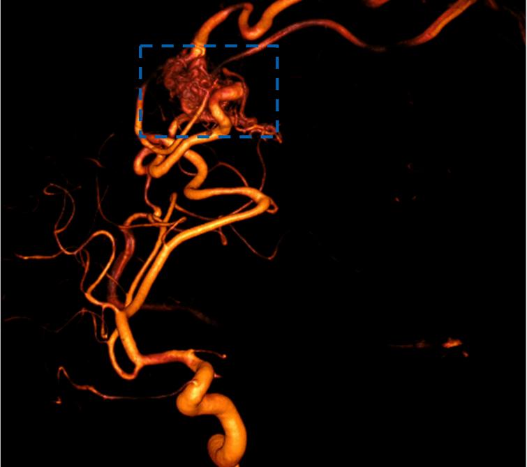 Aufnahme einer Vene