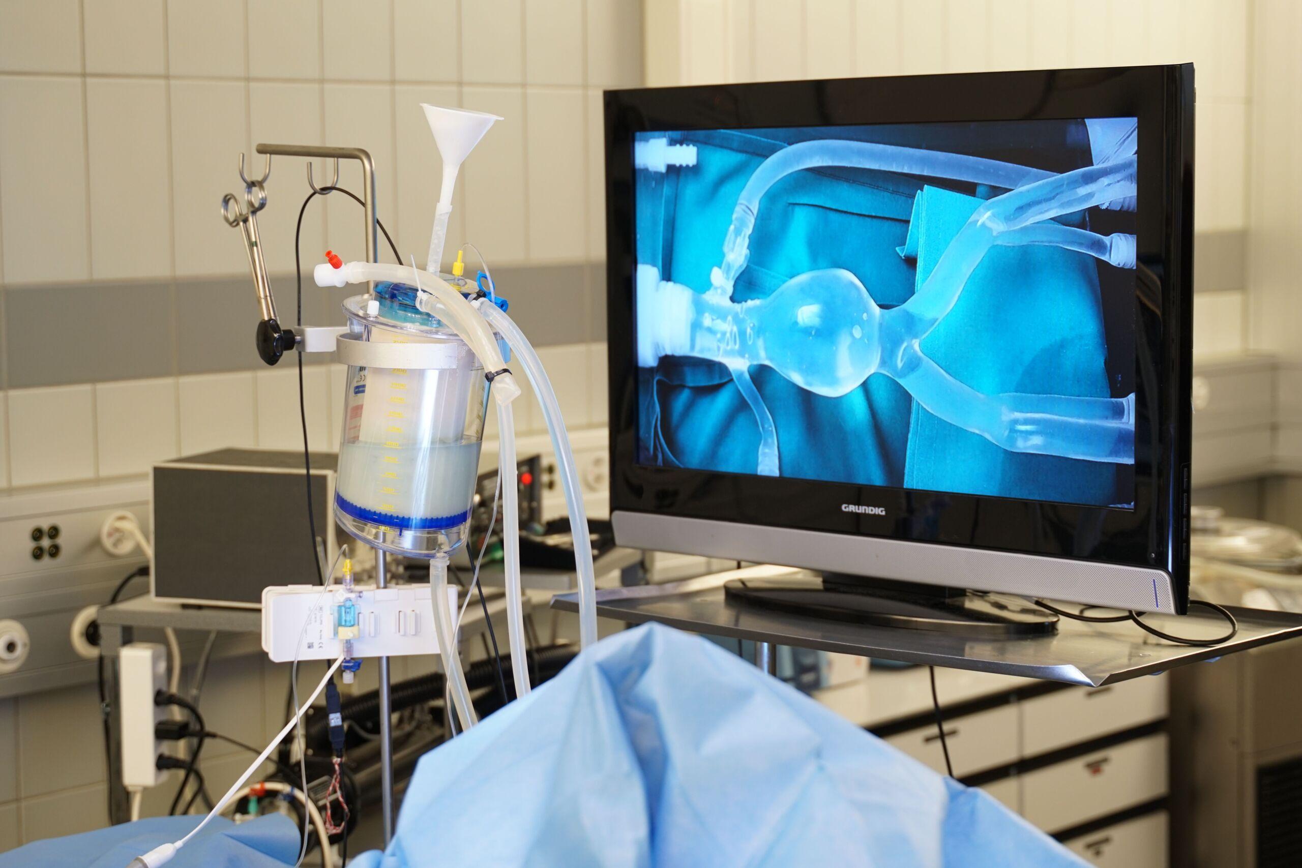 Simulation eines Aneurysmas ist auf einem Bildschirm erkenntlich
