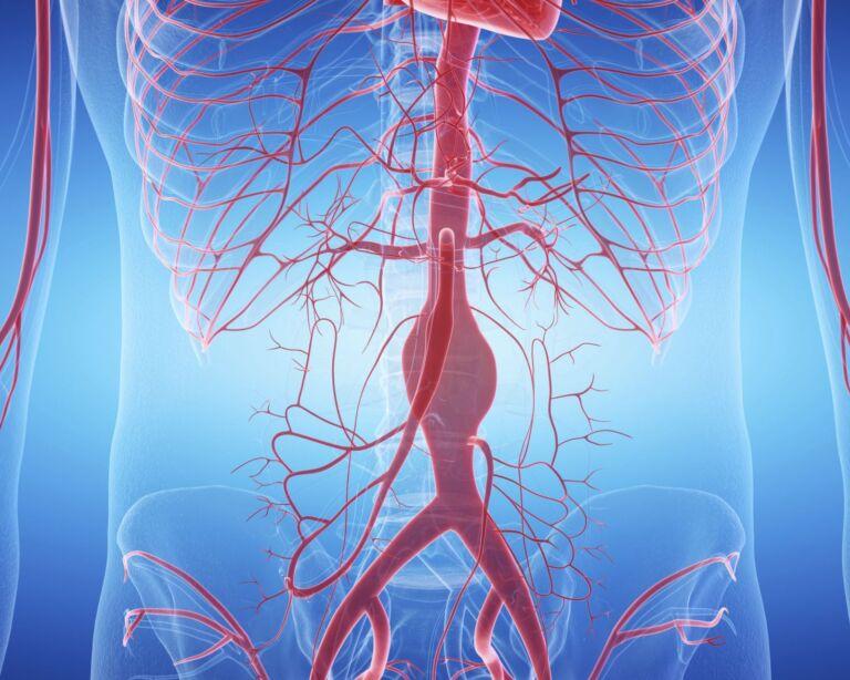 Illustration der Arterien im Körper mit Fokus auf eine aufgeblähte Arterie - Aneurysma