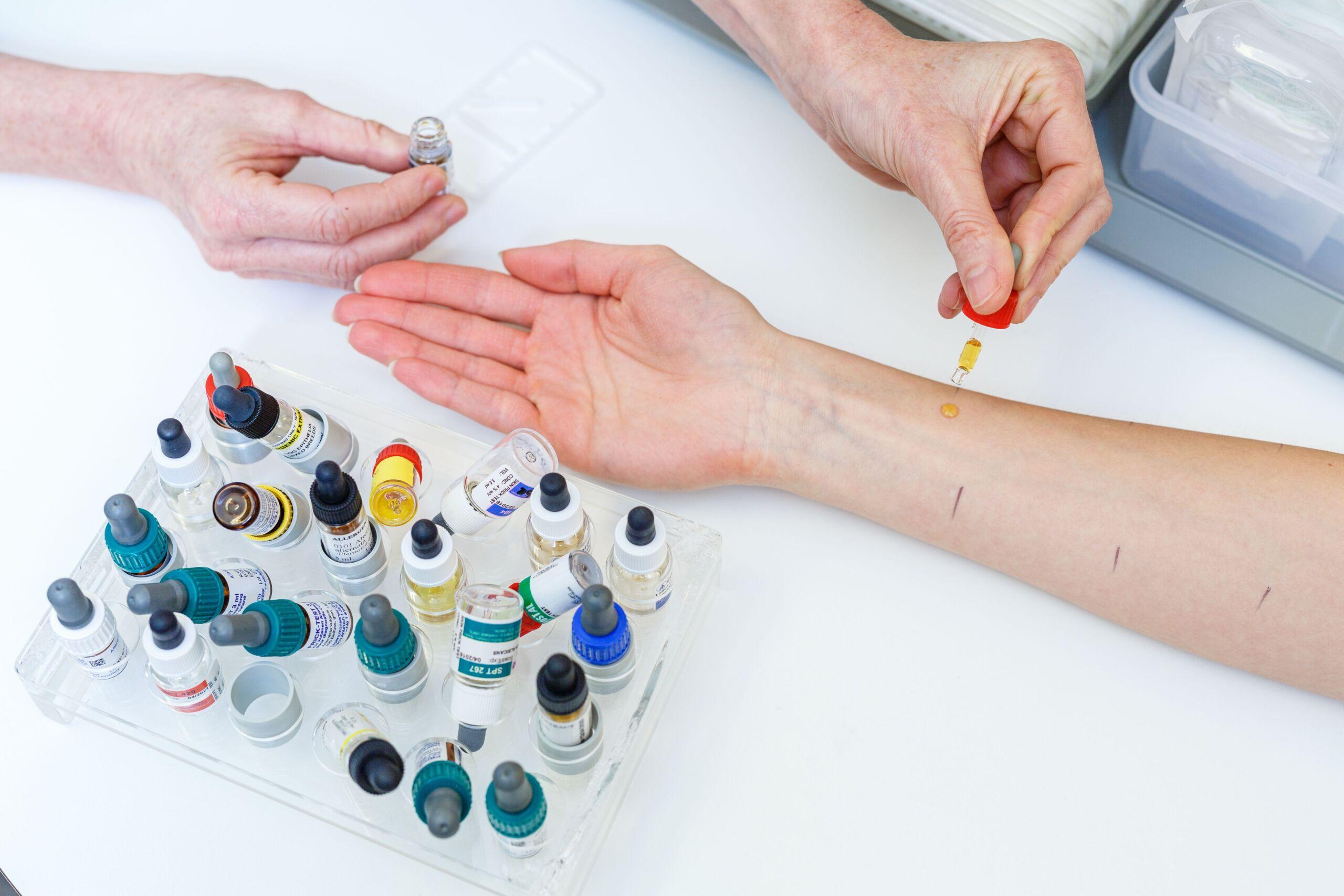Nahaufnahme eines Arms, an dem gerade ein Allergietest durchgeführt wird