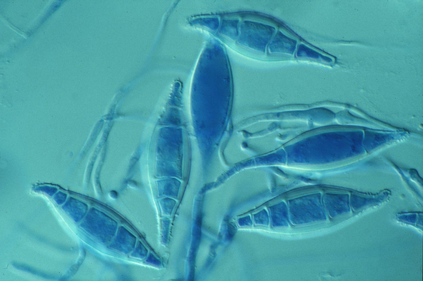 Pilze und Kulturpräparat von Microsporum canis