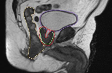 Stereotaktische Strahlentherapie MRI Aufnahme beim Pankreaskarzinom