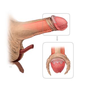 Illustration eines Penis bei dem ein Eingriff durchgeführt wird