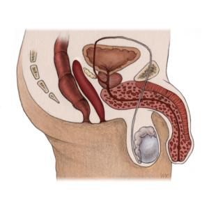 Illustration eines Querschnitts durch die Beckenregion des Mannes