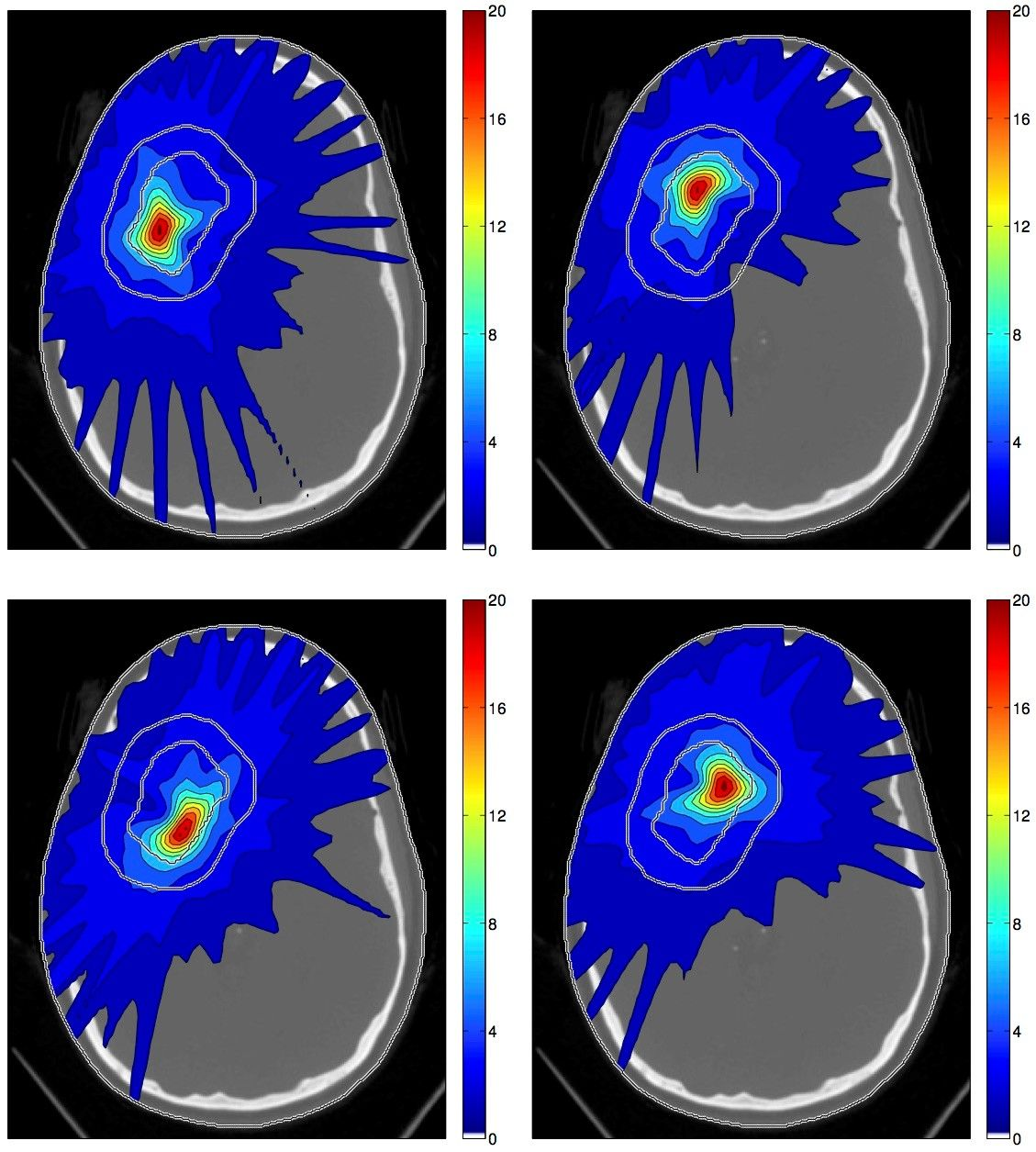 Spatiotemporal treatment plan for a large cerebral AVM