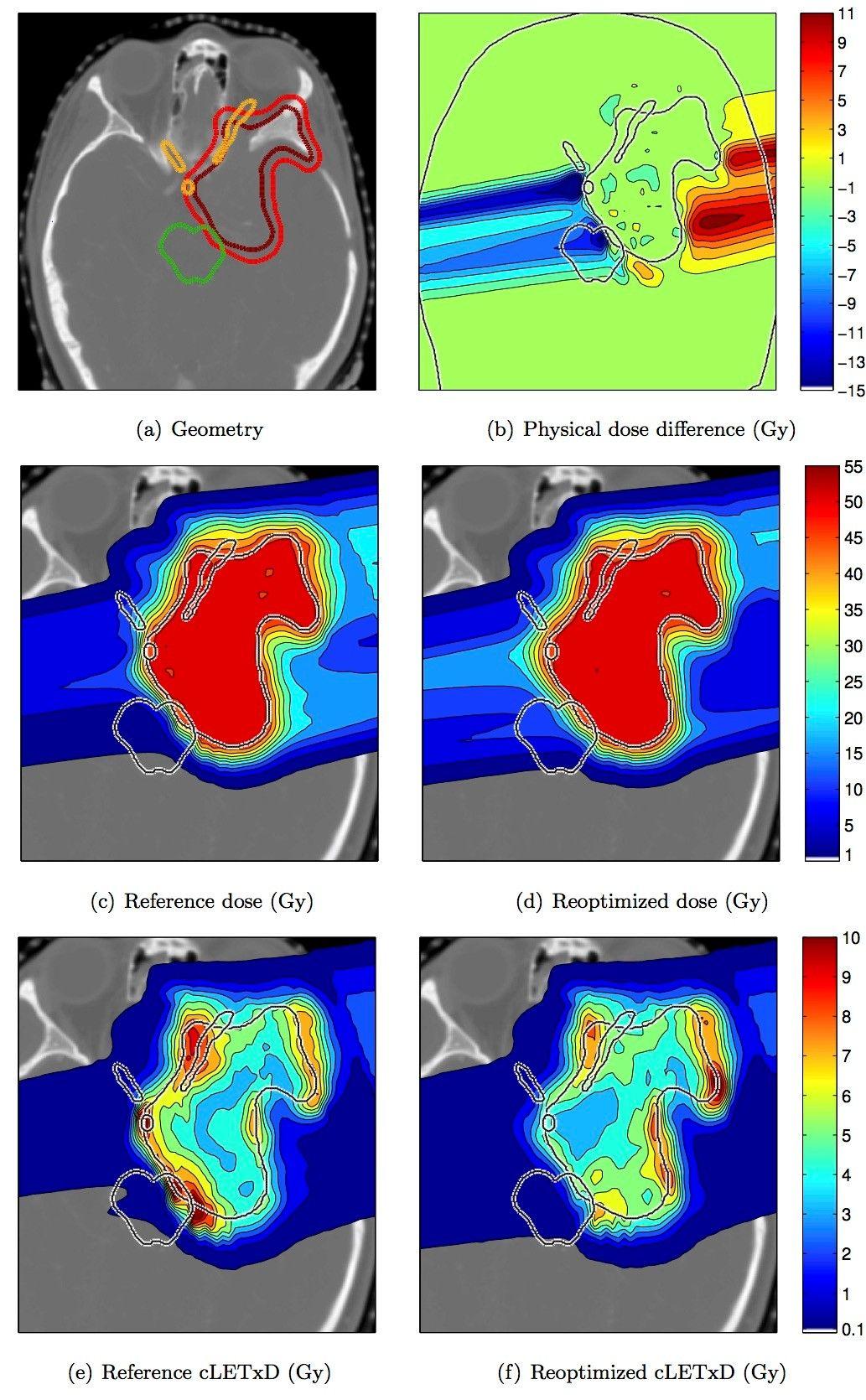 LET based IMPT reoptimization for a meningioma patient
