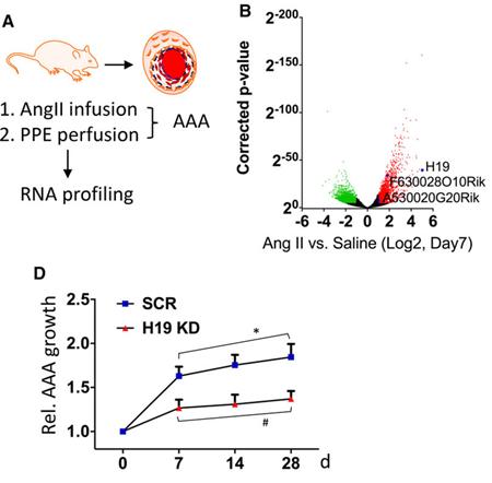 Abbildung. Nicht-codierende RNA H19 ist überexprimiert in AAA.