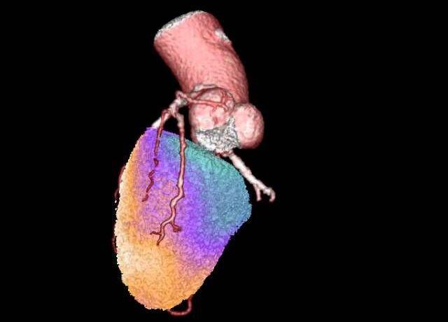 Thumbnail Video Herzbildgebung