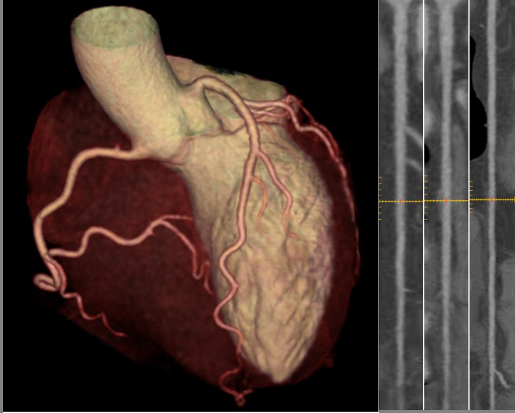 3D Aufnahme eines Herzes