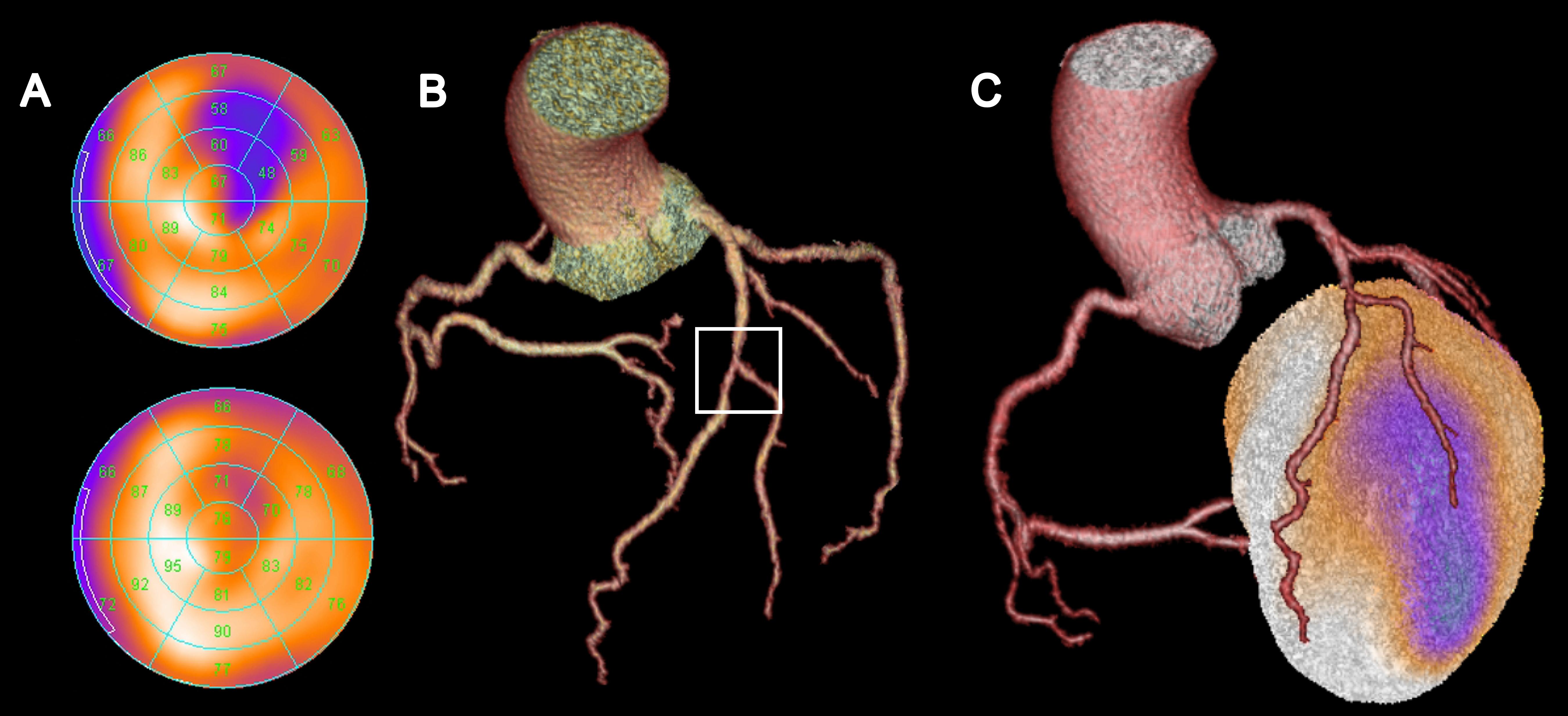3D Aufnahme einer Aorta