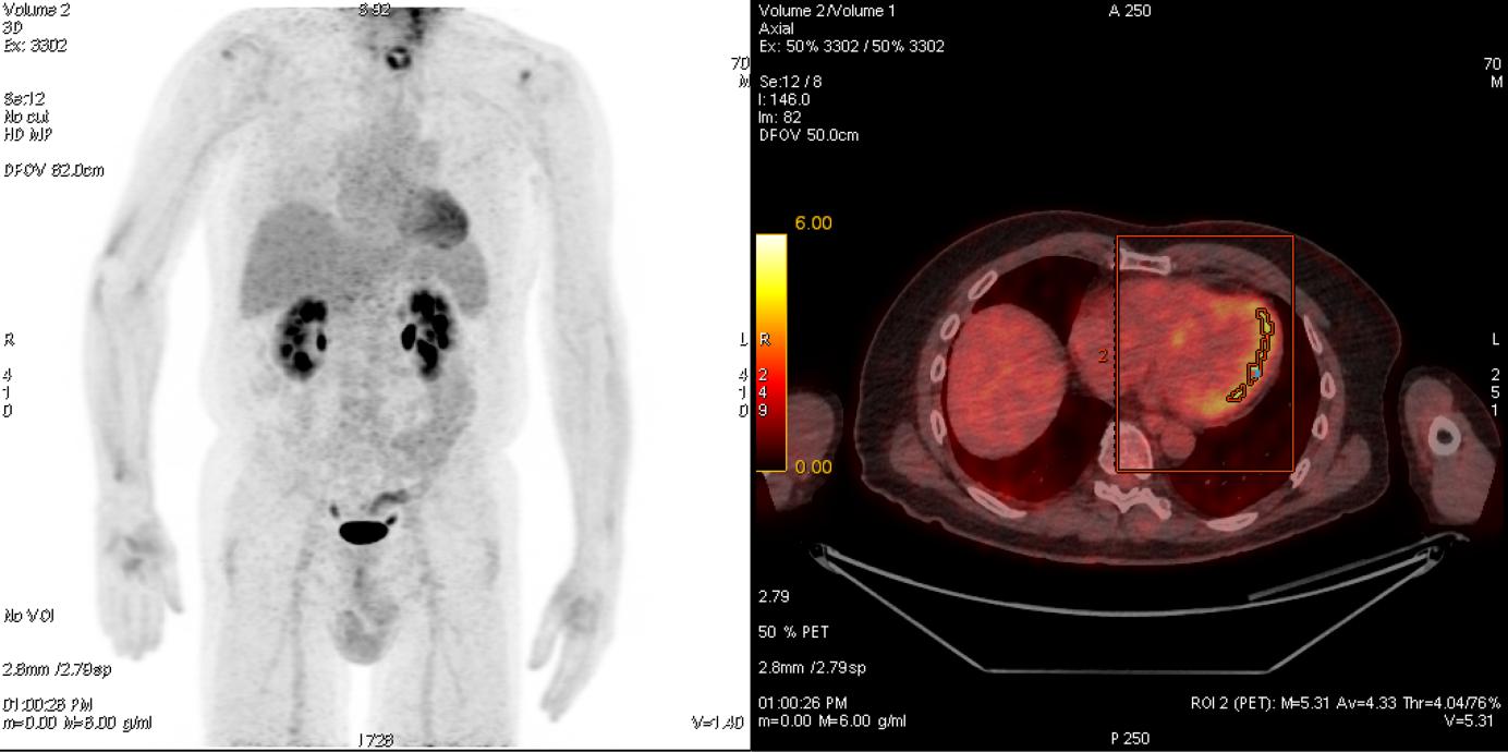 Kontrastmittelaufnahme eines Patienten mit Metastasen