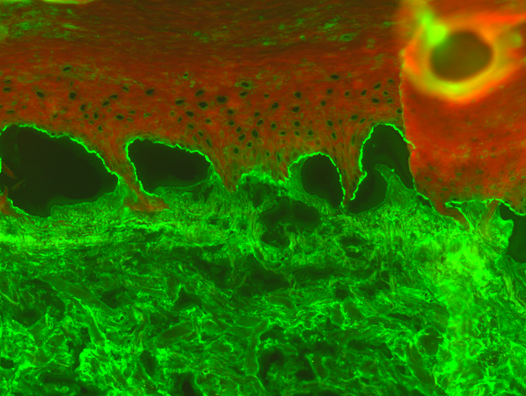Indirekte Immunfluoreszenz auf Spalthaut, Nachweis von Antikörpern gegen die epidermale Seite