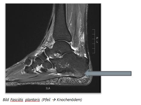 MRI Aufnahme eines Knochenödems