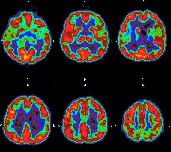 Verschiedene PET Aufnahmen eines Gehirns