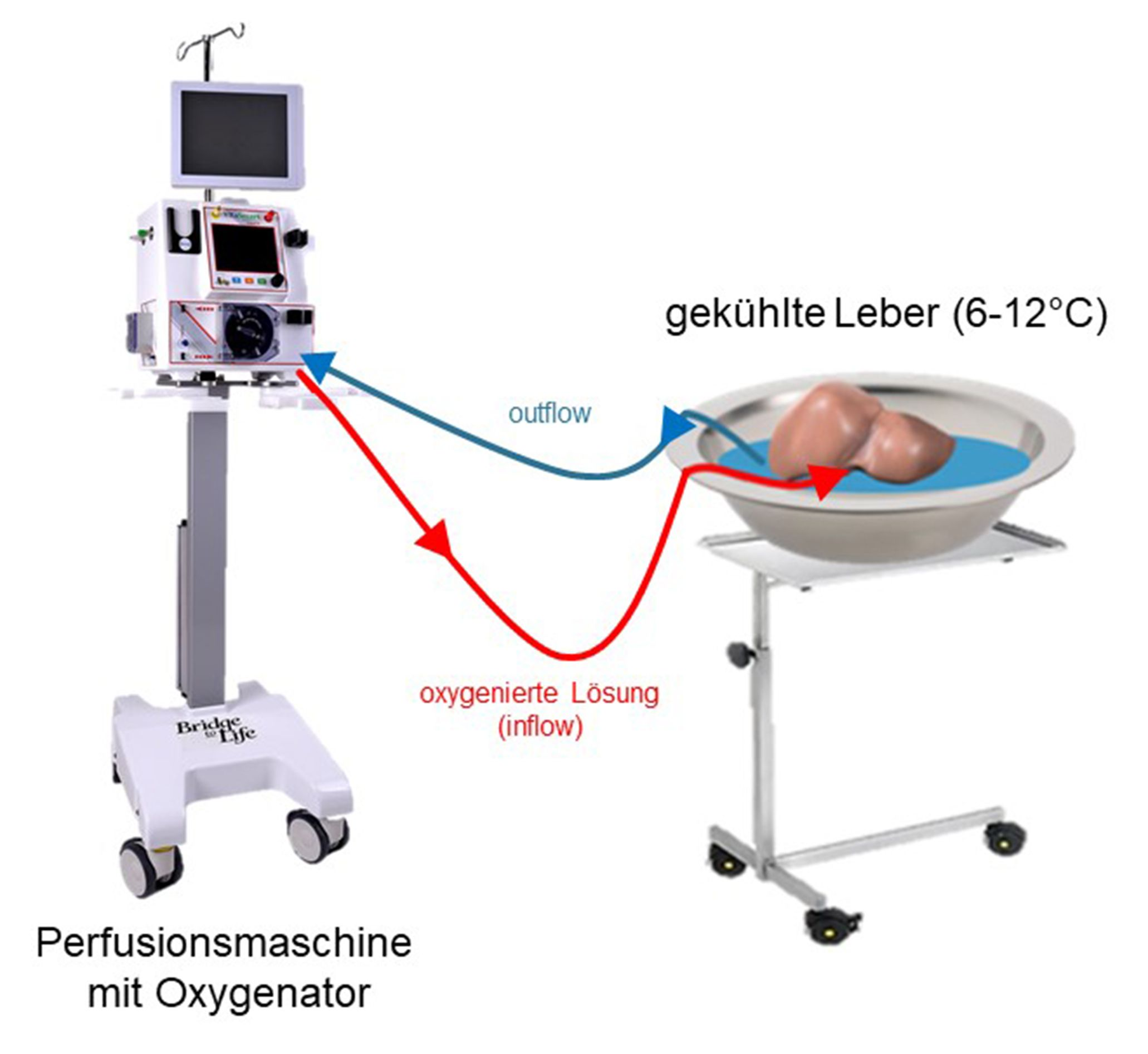 Schema zur Leberperfusion (HOPE-Technik)