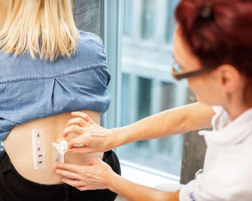 Eine Ärztin führt einen Allergietest durch