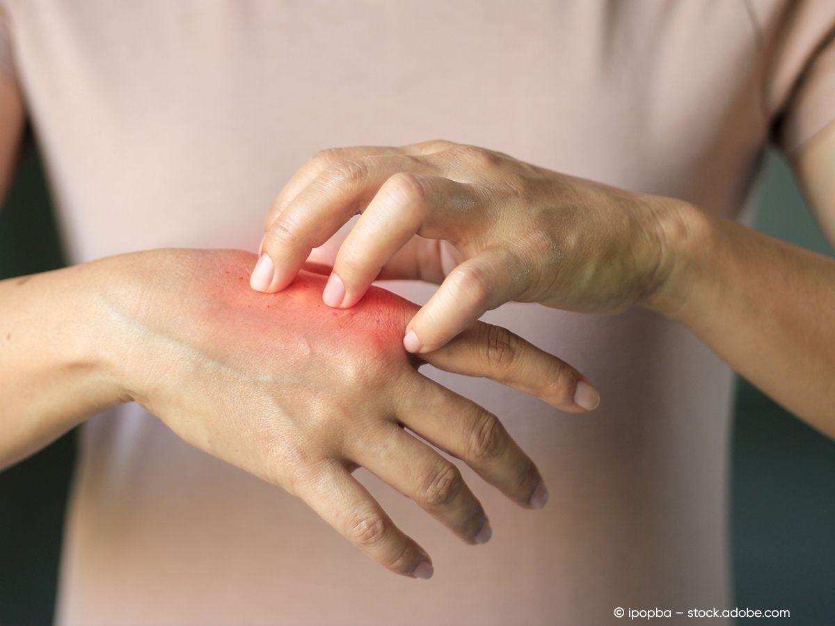 Eine Frau kratzt sich an der Hand, welche gerötet ist