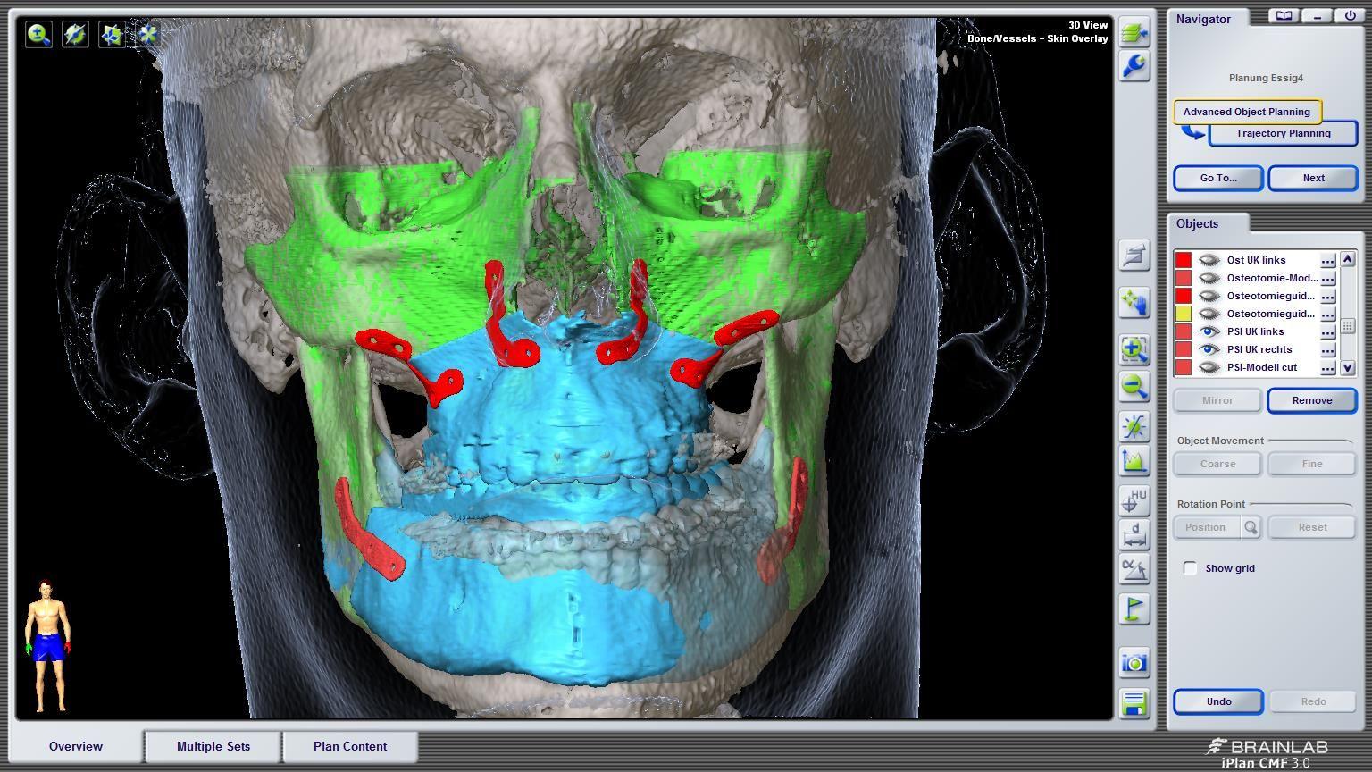 3D Aufnahme einer Kieferfehlstellung