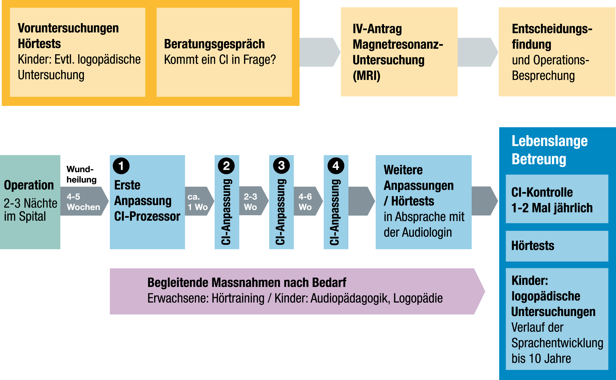 zeitlichen Ablauf bei einer Cochlea-Implantat-Versorgung am Cochlea-Implantat-Zentrum Zürich