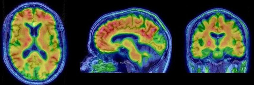MRI Aufnahmen des Gehirns mit Alzheimer