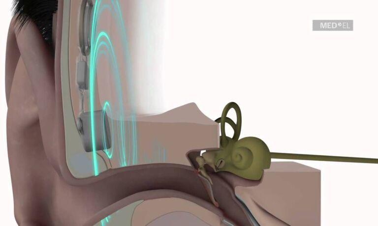 Bonebrdige Hörgerät Illustration