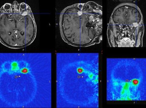 PET und MRI Aufnahmen eines Gehirns mit Meningeon