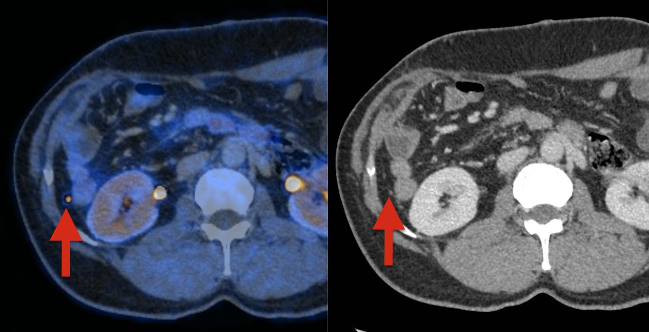 MRI Aufnahme des Körperinnern mit Metastasen
