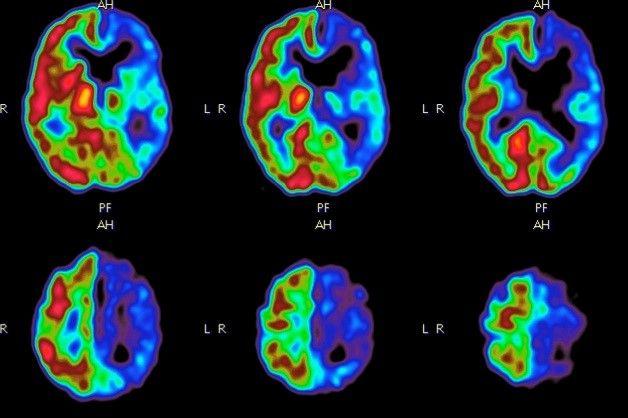 PET Aufnahmen des Gehirns