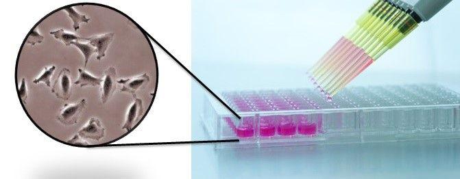 Tumorzellen werden mit Pipetten in Zellkulturtestplatte abgefüllt