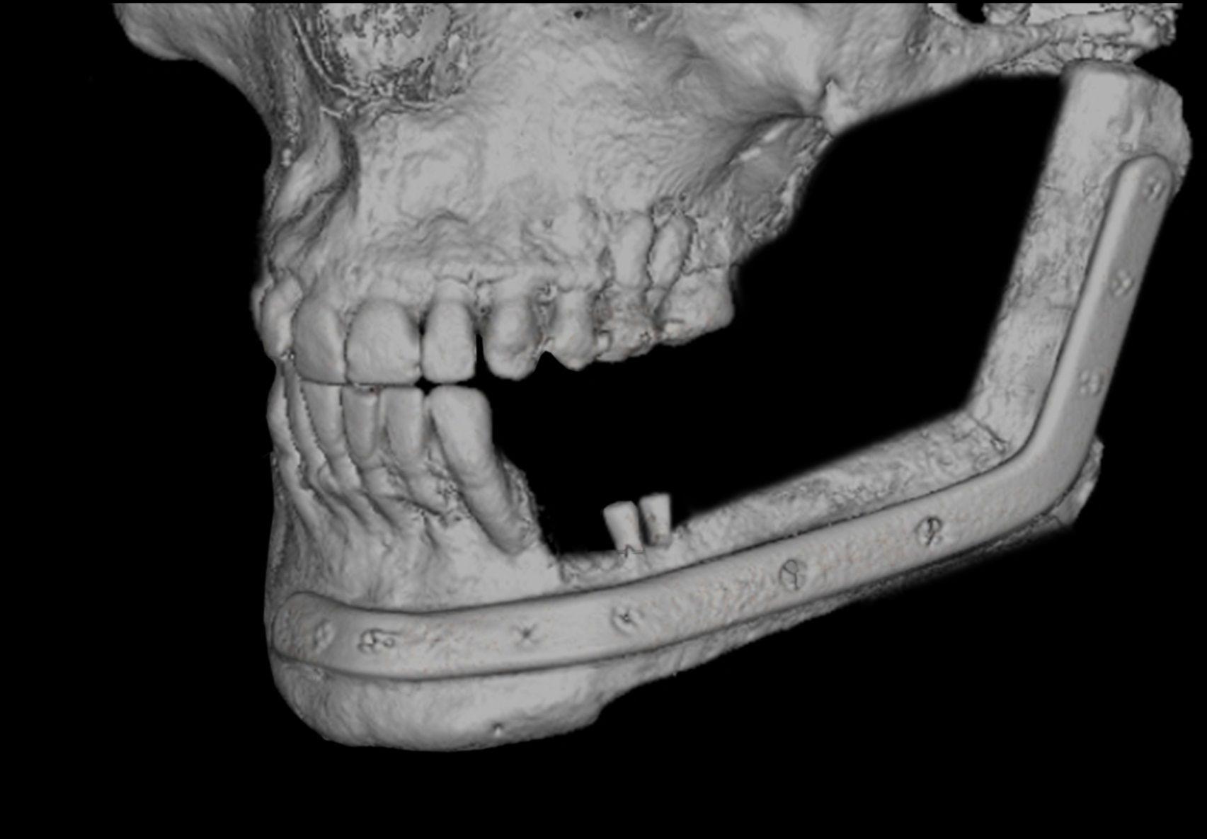 3D CT einer patientenspezifischen Fibularekonstruktion.