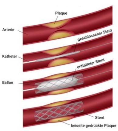 Illustration eines Katheter in einem Gefäss
