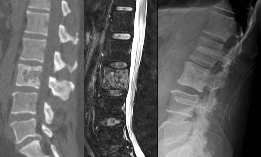 Computertomographie und Magnetresonanztomographie einer Krebs-Metastae