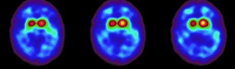 DaTScan® bei einem Patienten mit Parkinson'scher Erkrankung