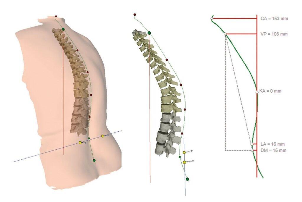 Darstellung eines optimalen Winkels einer Wirbelsäule
