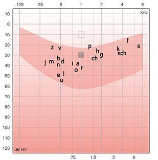 Audiogramm Grafik