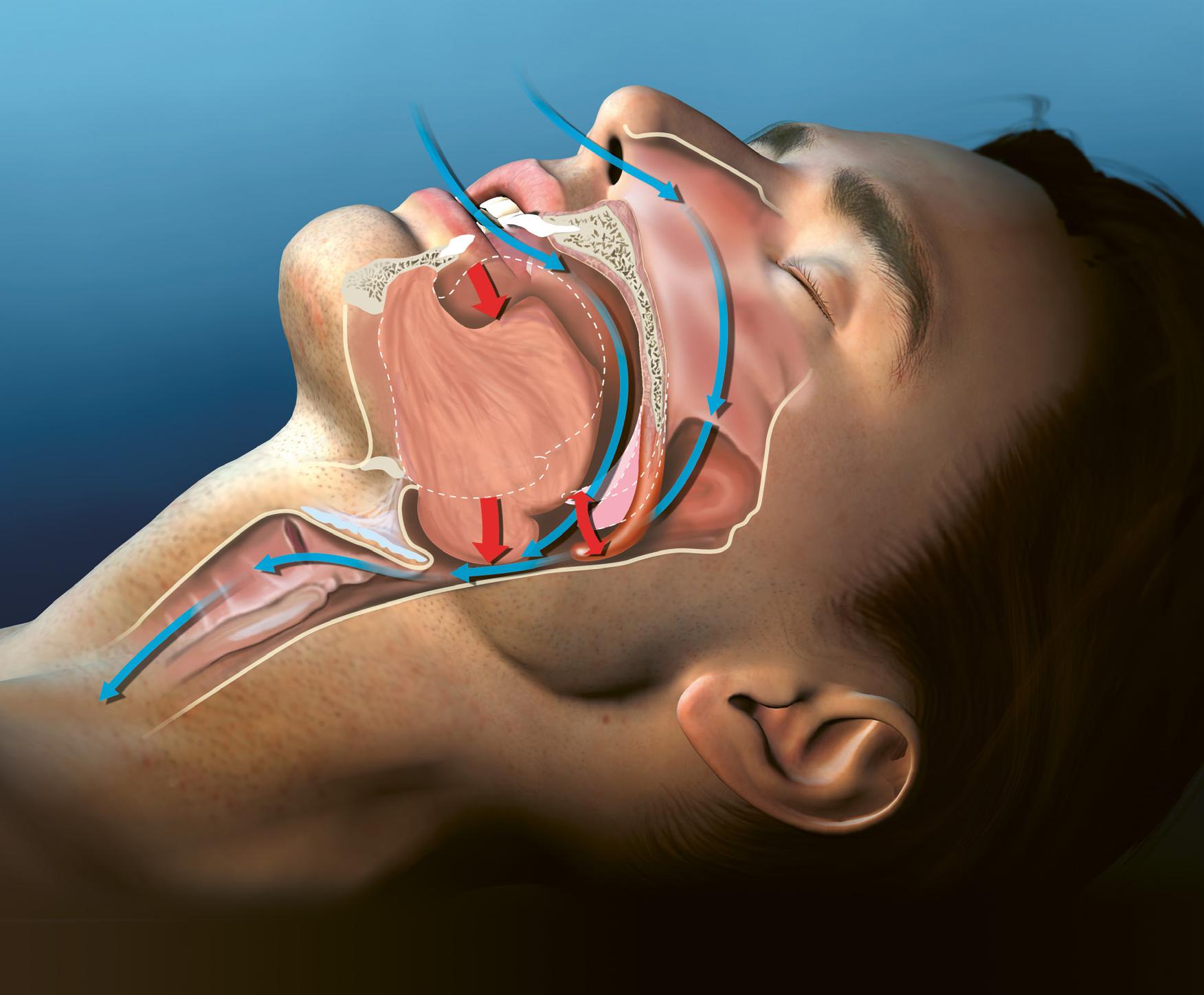Illustration eines Mannes der schläft um Schnarchen zu veranschaulichen