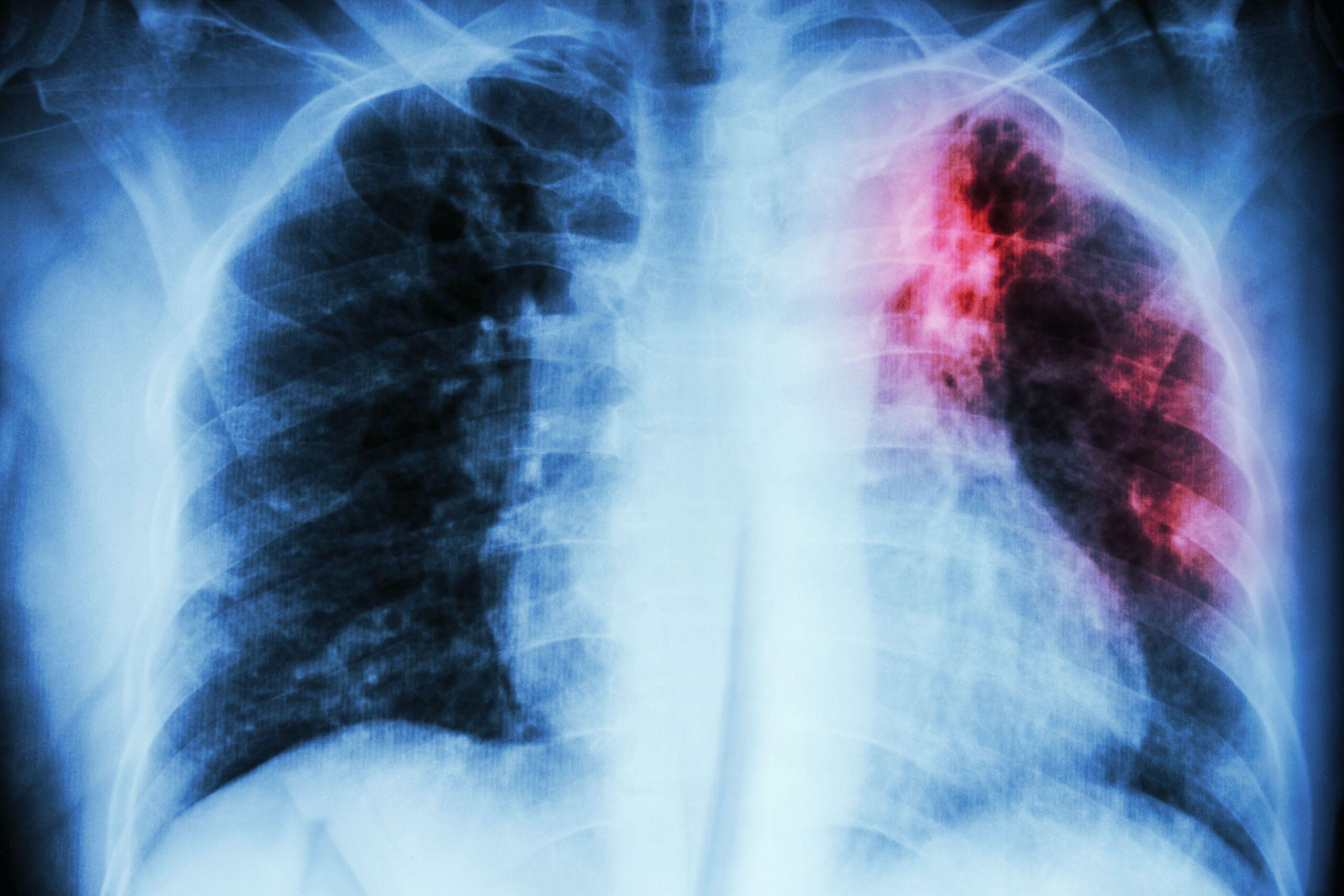 Röntgenbild einer Lungentuberkulose