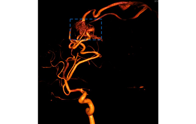 Gefässmissbildung (Arteriovenöse Malformation) in den Blutgefässen des Kopfes. Die AVM ist als Gefässknäuel sichtbar.