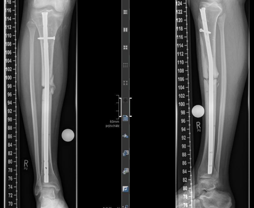 Die Röntgen Analyse einer Schienbein- Pseudarthrose nach Marknagelung