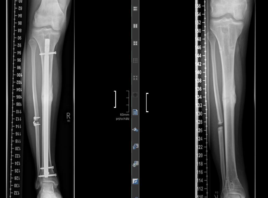 Röntgenaufnahme Marknagelwechsel