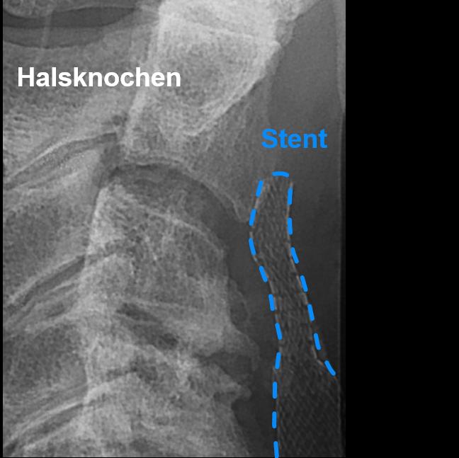 Röntgenaufnahme: Der Stent wurde im Gefäss am Hals platziert.