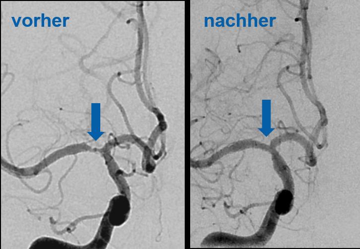 Die mittlere Gehirnschlagader vor und nach der Behandlung mit einem Stent. Vor der Behandlung ist das Blutgefäss verengt, danach ist die normale Breite wiederhergestellt.