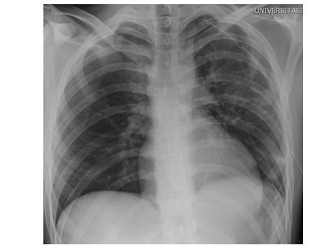 Vollständige Ausdehnung der linken Lunge nach Einlage einer Thoraxdrainage Röntgenbild