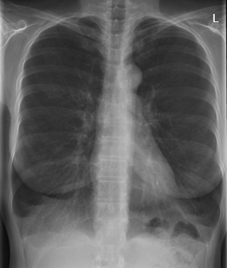 Röntgen-Übersichtsdarstellung des Brustkorbes bei COPD