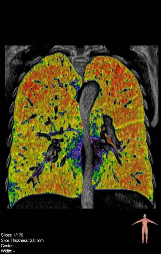 Computertomographie der Lunge bei COPD