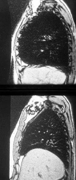 Seitliches Bild vor (oben) und nach (unten) LVRS.