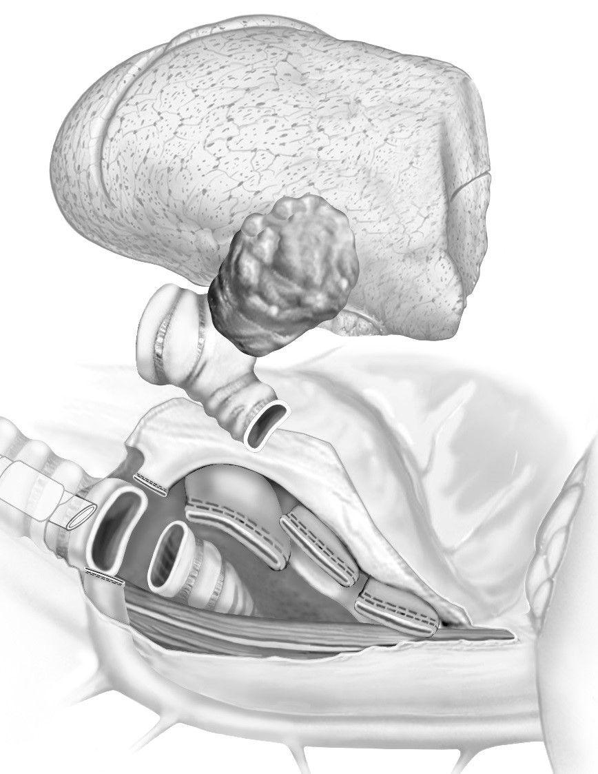 Illustration der Sleeve-Pneumonektomie
