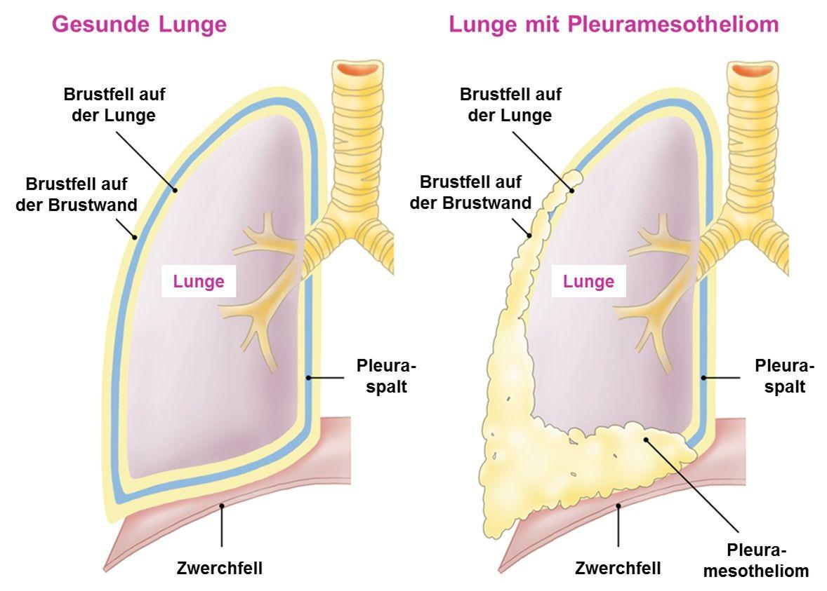 Illustration gesunde Lunge verglichen mit Lunge mit Pleuramesotheliom
