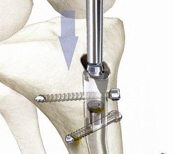 Implantate zur Stabilisierung des Knochens